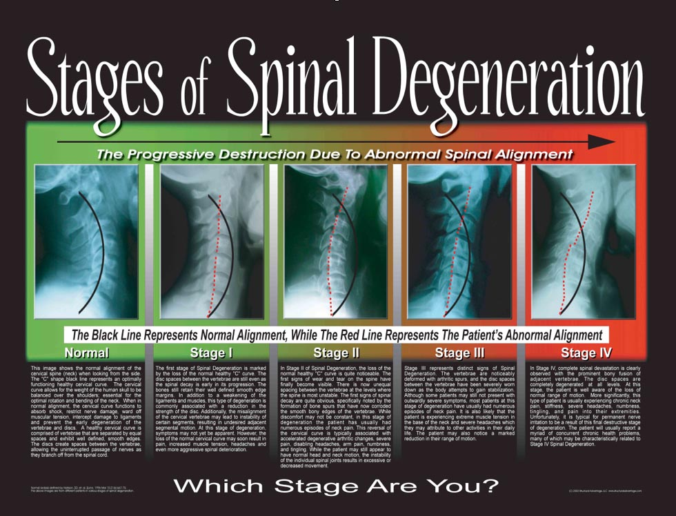 Stages of Spinal Degeneration